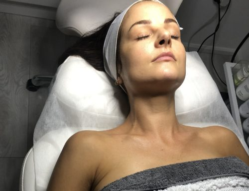 My Visit to New Life Aesthetics for my first ever Skin Peel